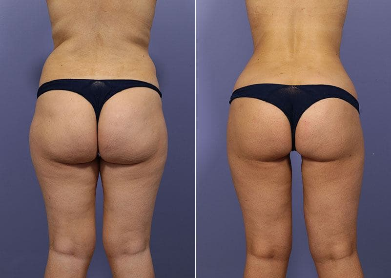 before and after posterior lift procedure