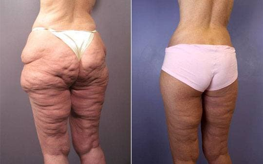 before and after tummy tuck procedure
