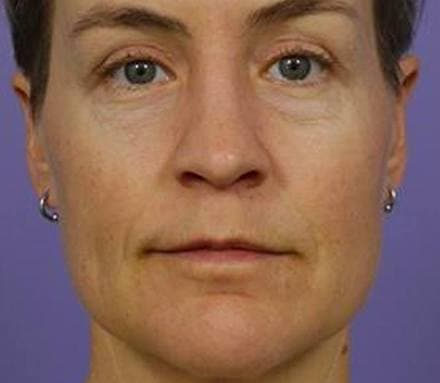 After aging skin treatment