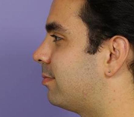After double chin treatment