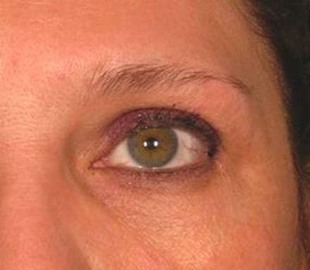 Before sagging brow treatment