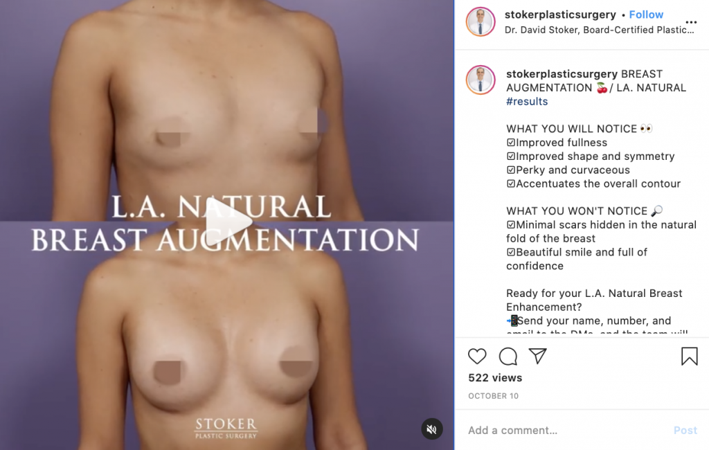 LA Natural breast augmentation before and after reveal on Instagram.