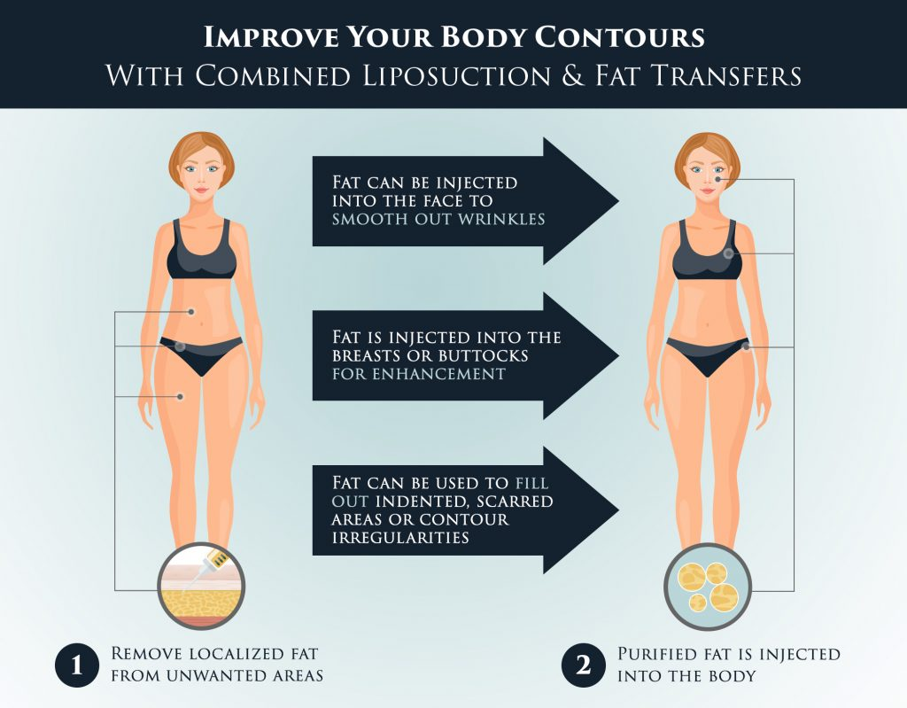 Fat transfer can add volume and improve your body contours.
