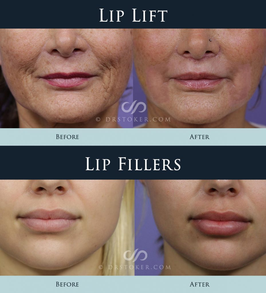 Lip Lift vs Filler Before and After