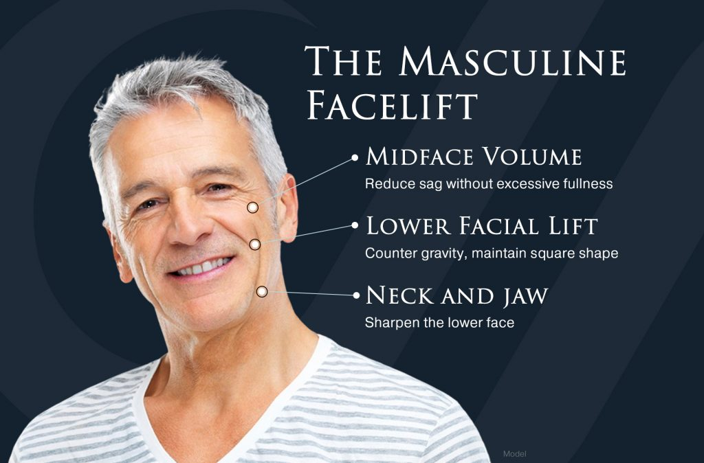 Infographic displaying the different areas of a man's face that can be treated with a facelift